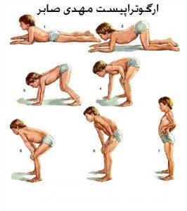 دیسترفی عضلانی