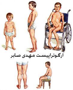 دیستروفی عضلانی