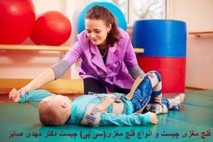 انواع فلج مغزی در کودکان