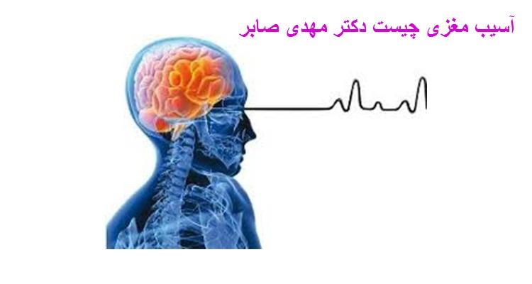 آسیب مغزی چیست